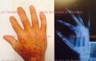 Fotos de Psoríase Artropática