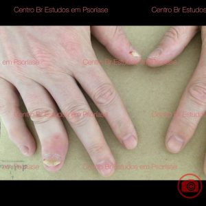 psoríase artropática deformante com erosão óssea