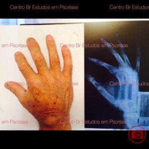 psoríase artropática com RX mão