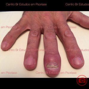 psoríase artropática com dactilite e psoríase na unha 3o.dedo