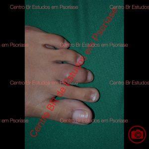 Psoríase artropática com dactilite (inchaço) 3o. dedo