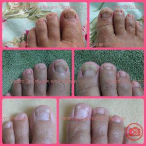 Psoríase artropática e nas unhas antes e depois de tratamento sistêmico
